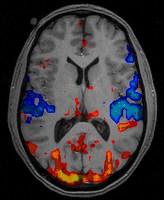 Neuroethics: expanding horizons